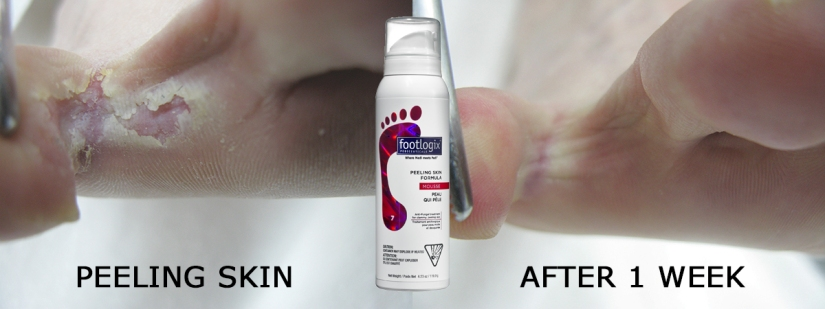 Peeling Skin B&A